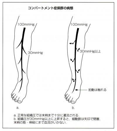 下腿での動脈本幹の圧は約100mmHg、毛細血管圧は20 〜 30mmHg。したがって、何らかの原因で末梢組織圧が30mmHg以上になると毛細血管が圧迫されて阻血状態になります。これがコンパートメント症候群の本態なのです。