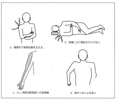 五十肩の典型的な症状